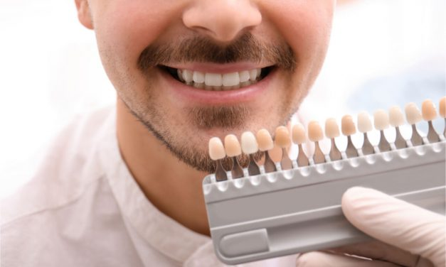 Composite veneers to restore your smile
