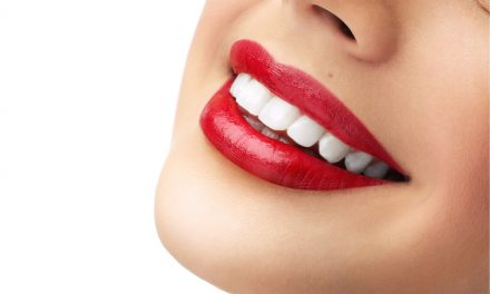 How to get celebrity white teeth
