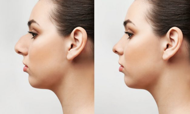 Rhinoplasty: how to make your nose smaller