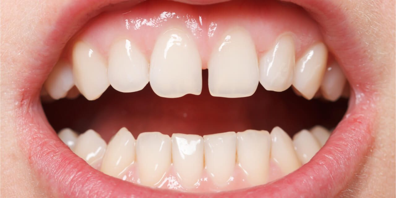 Teeth Bonding for Gaps