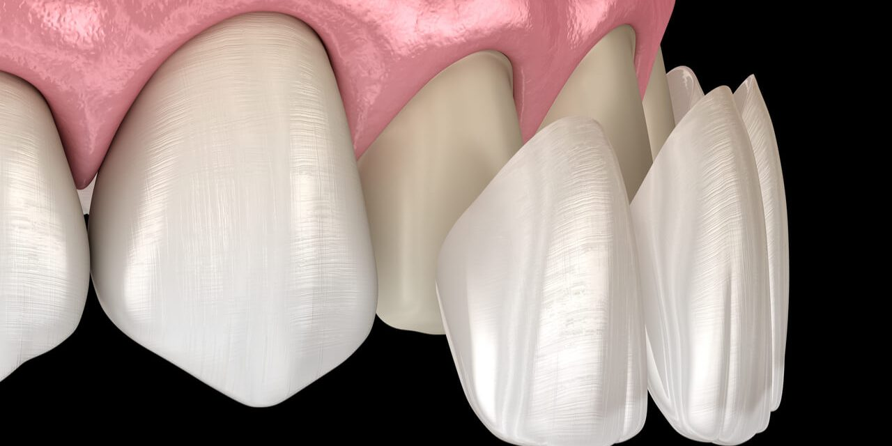 Dental Composite Veneers