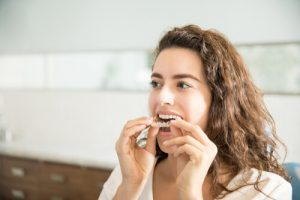 clear plastic removable aligners over the counter