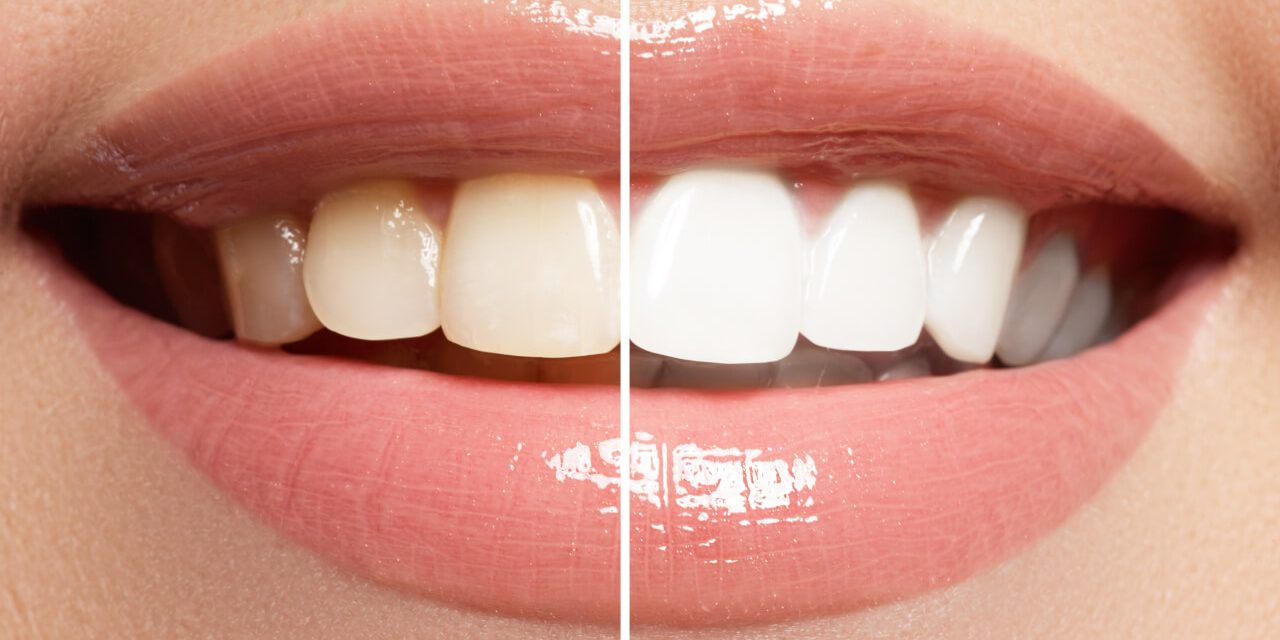 Teeth Bleaching for a Confident Smile