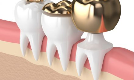 Dental Inlays And Onlays: How Are They Used To Restore Teeth?